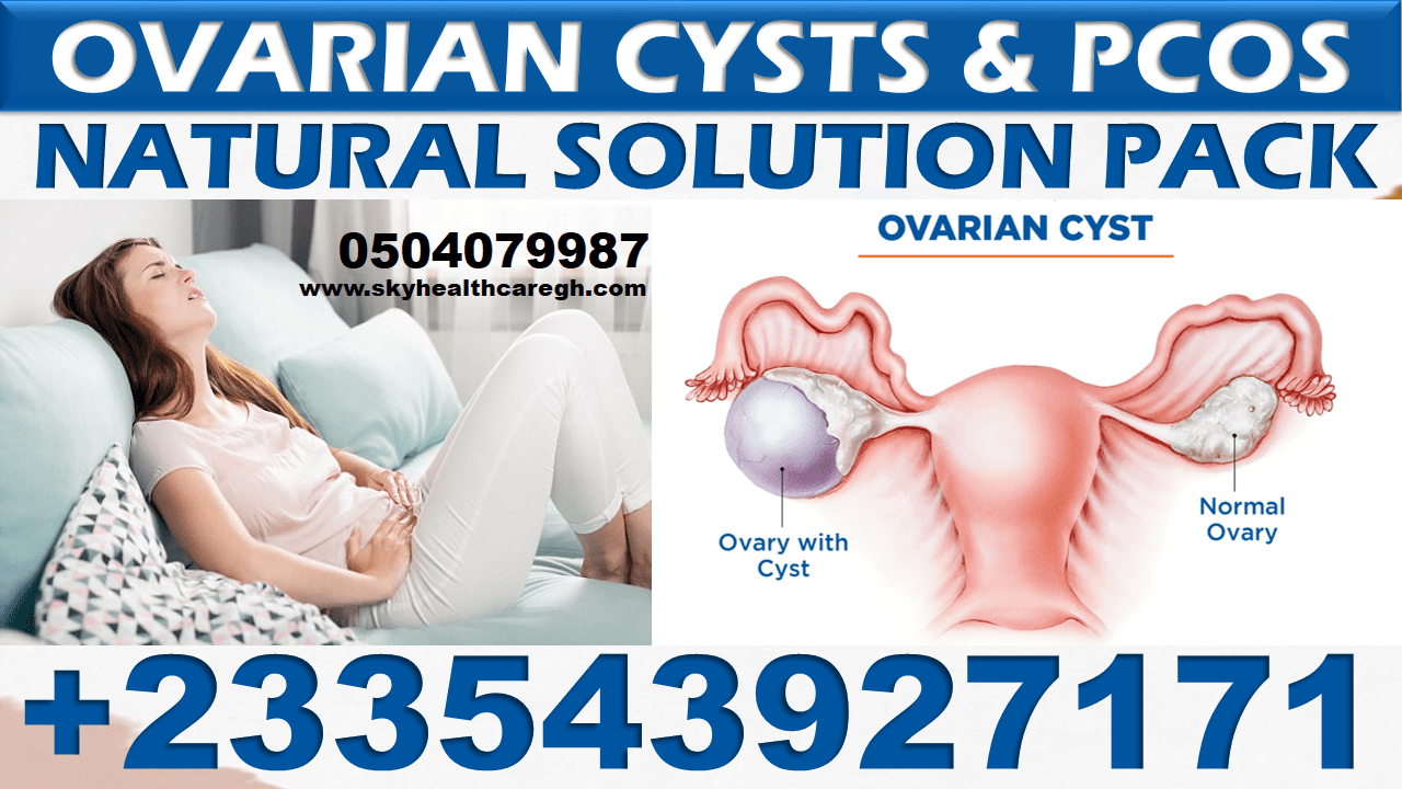 Ovarian Cysts Natural Pack