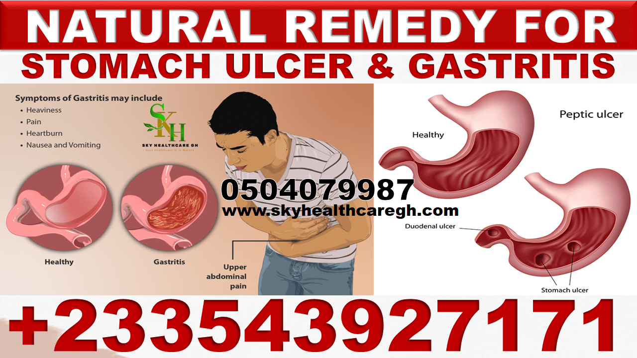 Natural Remedy for Gastric Ulcer in Ghana