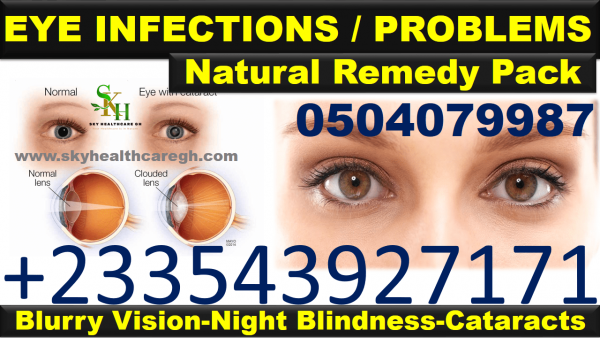 Natural Remedy for Eye Infections in Ghana